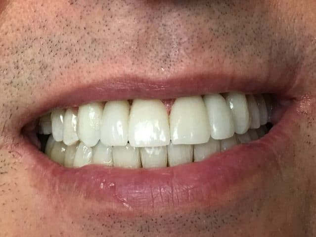 dental after photo