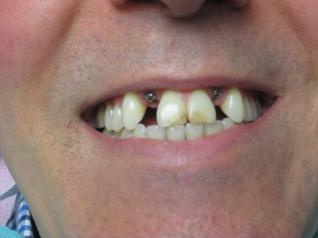 dental before photo